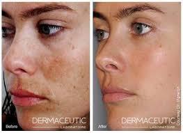 verwijderen pigmentvlekken gezicht