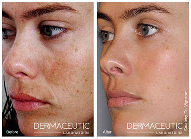 Pigmentvlekken gezicht Doetinchem